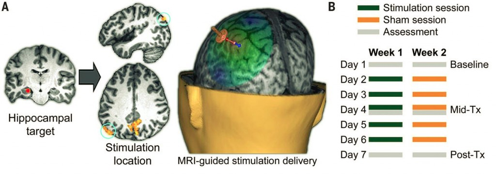 TMS Stimulation of the Parietal Cortex